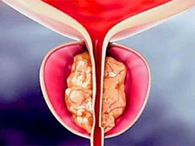 Urologist: Try This If You Have An Enlarged Prostate (Watch)